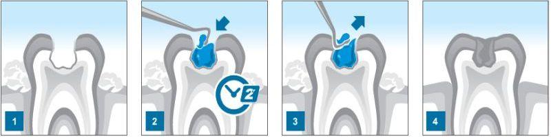 Аргентински стоматолози претставија гел кој го неутрализира кариесот